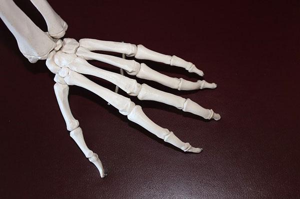 Эндопротезы суставов кисти керамика коксартроз тазобедренного сустава лекарства
